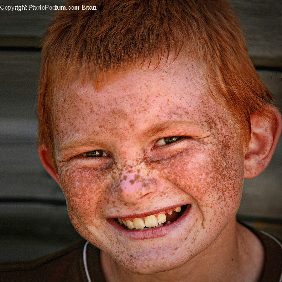 Human, People, Person, Face, Freckle, Skin, Dimples